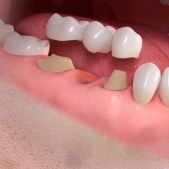 Conventional_3-unit_bridge_treatment